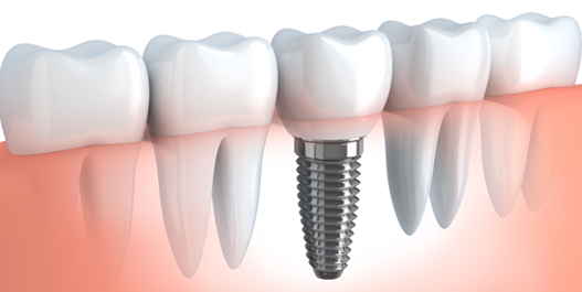 dental implants img 1.png